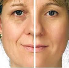 خواص زالو انداختن برای لطافت پوست و درمان جوش صورت