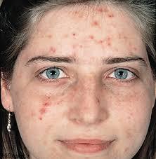 برای درمان مشکلات پوستی زالو درمانی کنید