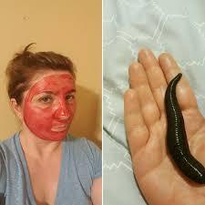 خواص زالو درمانی بهترین محافظ پوست صورت