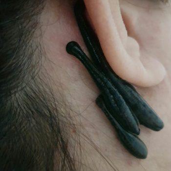درمان سینوزیت با خواص زالو درمانی
