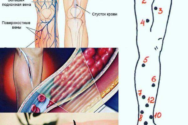 کاربرد خواص زالو درمانی در جراحی های پلاستیک