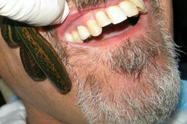 خواص زالو درمانی برای جوش های صورت