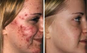 زالو انداختن بهترین روش درمان جوش صورت