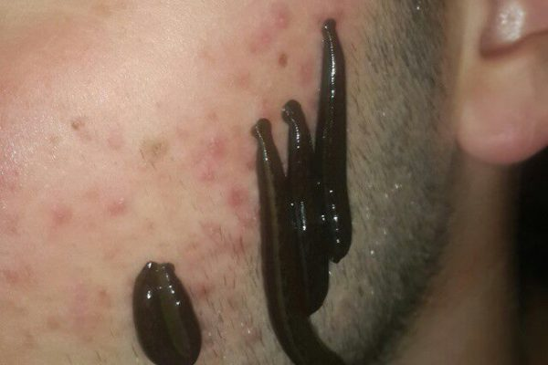 زالو درمانی بهترین راه برای مداوای جوش صورت