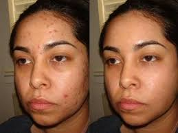 جوش صورت را با خواص زالو درمانی مداوا کنید
